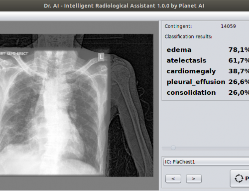 EU-Funding for Intelligent Radiological Assistant granted